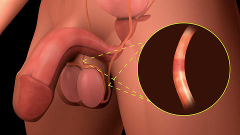 Vasectomy procedure for male sterilization Animation