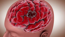 Conceptual video of a tumor in human brain Animation