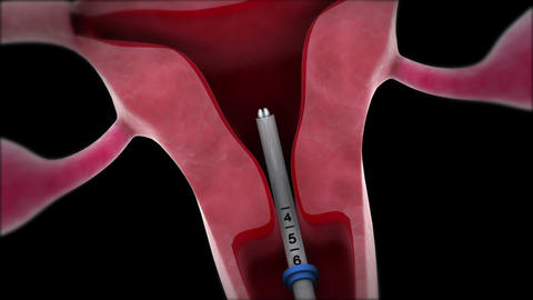 Insertion of an intrauterine device into the uterus Animation