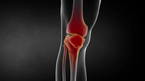 Visualization showing inflammation in human knee joint 애니메이션