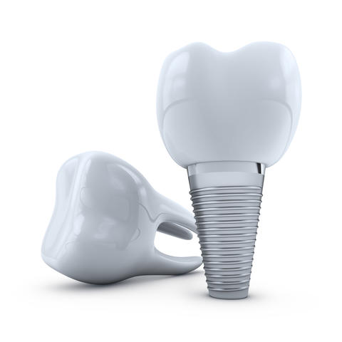 implant and molar Photo