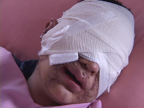 An Iraqi man who has been severely injured in the Iraq... Stock Video Footage