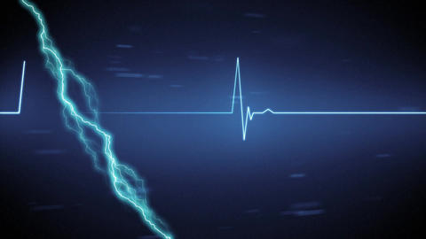 Lightning and heart rate Animation