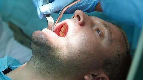 Dental implantation procedure Live Action