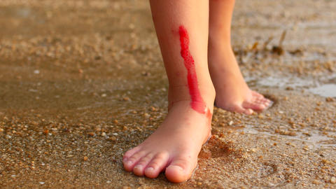 The child cut himself on coral in the sea, blood on his leg Live Action