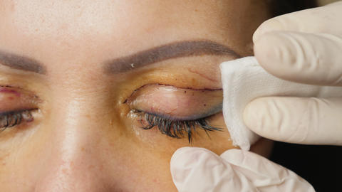 Lubrication wounds after blepharoplasty eyelids Live Action