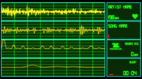 Heart Monitor Screen Music Visualizer After Effects Template
