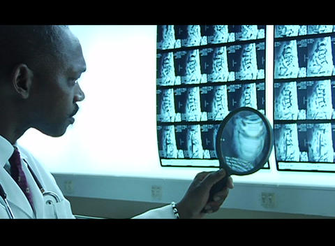 A doctor studies x rays with a magnifying glass Stock Video Footage
