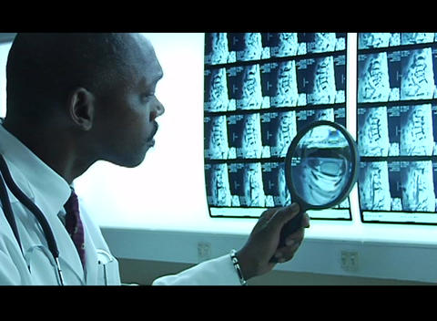 A doctor studies x rays with a magnifying glass Footage