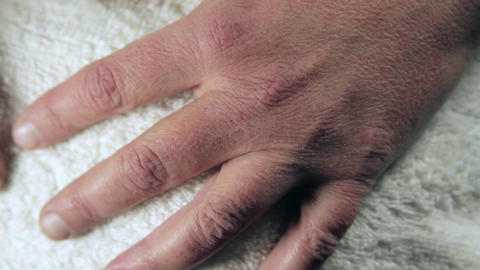 Woman Hand With Severe Allergies To Cold, Frost Bite, Itchy Skin, Tilt, Detail Footage