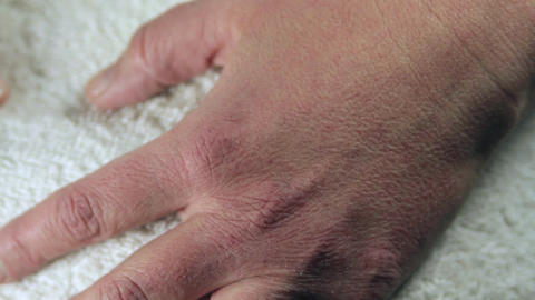 Woman Hand With Severe Allergies To Cold, Frost Bite, Itchy Skin, Close Up, Tilt Footage