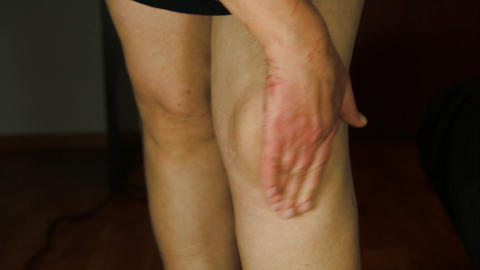 Woman Massaging Her Knee With A Numbing Cream, Pain, Rheumatism, Injury Live Action