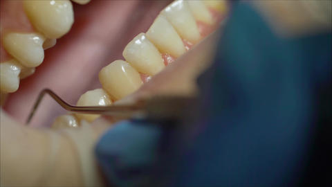 Dentist examining a patient's teeth in the dentist.… Stock Video Footage