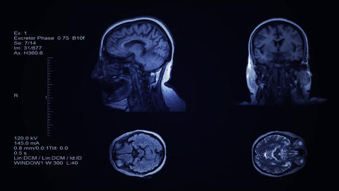 Head and brain computer tomography result visualization. Four partitions slides of human head Live Action