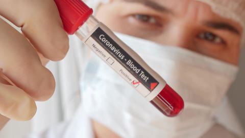 doctor showing tube, positive result of blood test for coronavirus, covid-19 Live Action