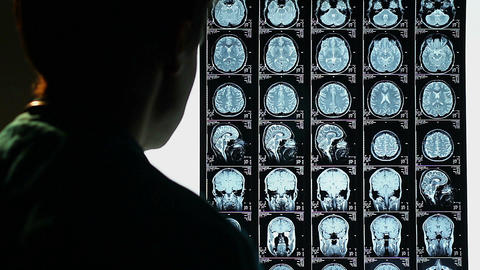 Head MRI, surgeon observing skull brain x-ray film, analysis Footage