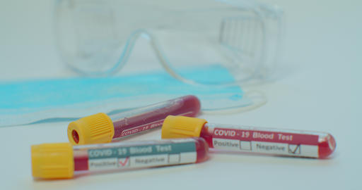Experimental tests on coronavirus covid-19 - test tubes in medical biotechnology Live Action