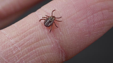 Blood-sucking mite tick creepes on the human finger to bite ライブ動画