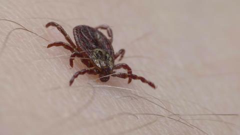 Blood-sucking mite tick tries to bite human skin Live Action