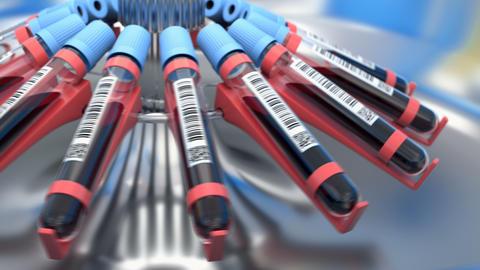 Plasmapheresis proccess in the lab centrifuge Animation