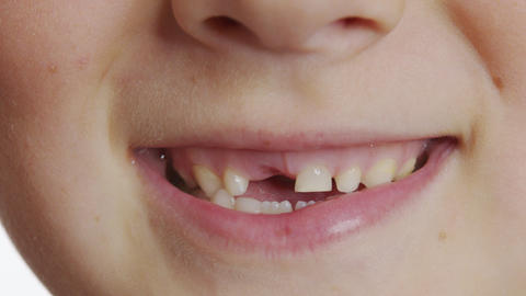 The boy mouth without a tooth. Baby teeth. Changing teeth. Oral care. Closeup Live Action