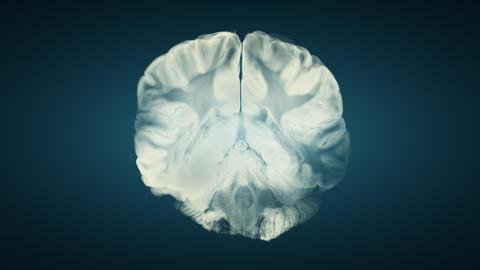 Vertical Section Through Cerebral Hemispheres. Human Brain Anatomy Animation