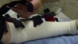Doctor adjusting installing arm brace after surgery HD 012 Footage