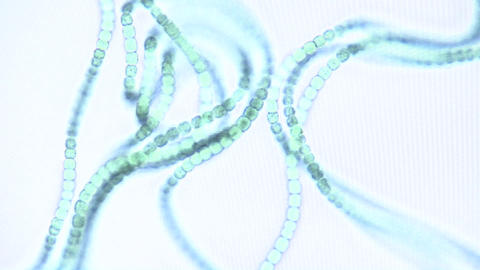 Microscopic view of chains of algae, these cyanobacteria,... Stock Video Footage