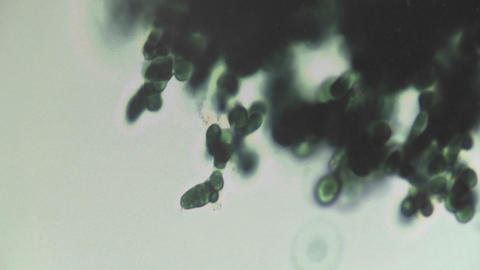 Microscopic view of a dark clump of algae, changing... Stock Video Footage