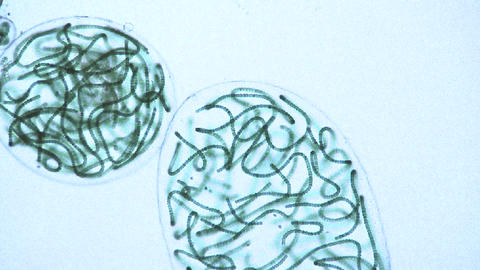 Microscopic view of sacks or bubbles containing chains of... Stock Video Footage