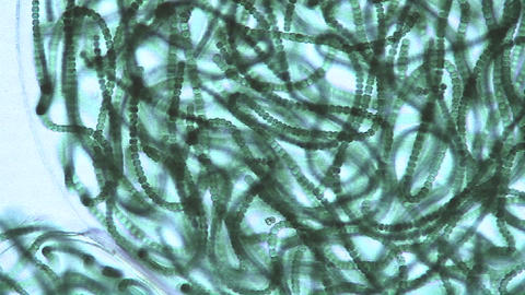 Microscopic view of sacks or bubbles containing chains of blue green algae moving around the culture Footage