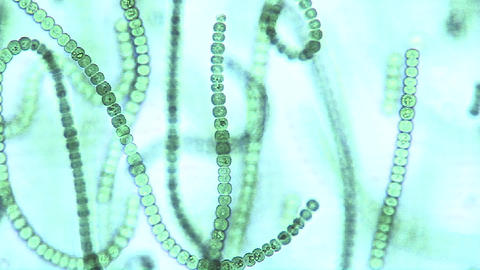 Microscopic view of chains of algae, these cyanobacteria, Microcystis sp., are a sort of blue green Footage