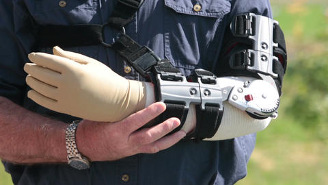 Man in adjustable arm brace rubs arm in pain P HD 2499 Footage