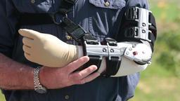 Man in adjustable arm brace rubs arm in pain P HD 2499 Stock Video Footage