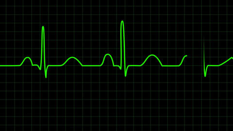 Electrocardiogram 2D animation Animation