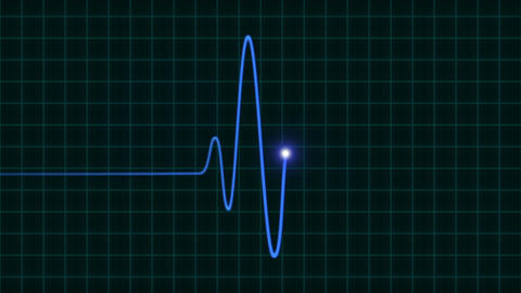 An Animated EKG Heartbeat Monitor