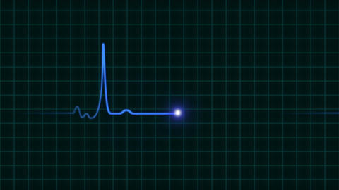 An Animated EKG Heartbeat Monitor 0