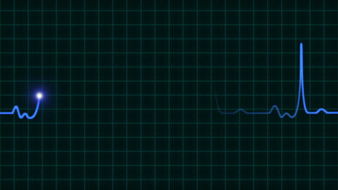 An animated EKG heartbeat monitor in blue wave line (four beat) Animation