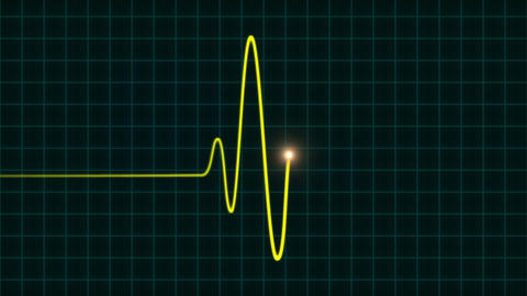 An Animated EKG Heartbeat Monitor 2