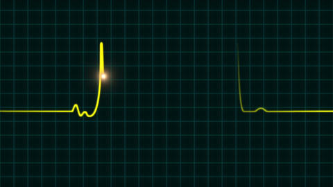 An animated EKG heartbeat monitor in yellow wave line (two beat) Animation