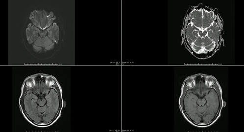 Magnetic resonance images (MR) of brain infarction Live Action