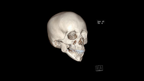 Computed Tomography of the facial bones in 3D rendering Live Action
