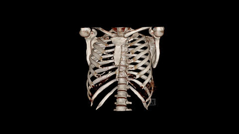 Computed Tomography Volume Rendering examination of the thoracic cage ( CT VR thoracic cage) Live Action