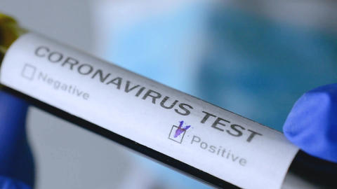 Coronavirus blood test in hospital laboratory positive test result Live Action