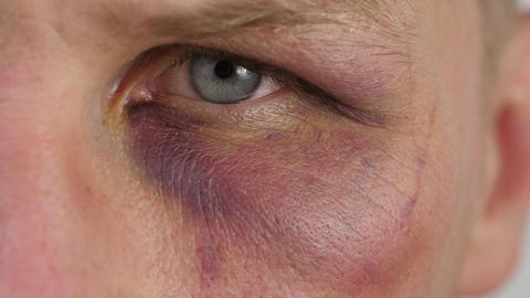 Bruise under the eye of a man ライブ動画