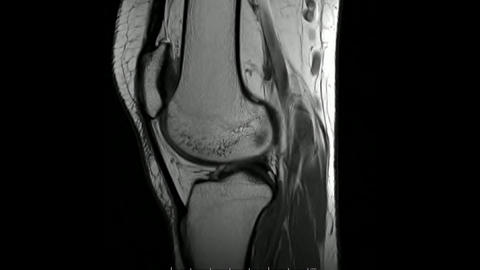 Magnetic Resonance images of The Knee joint Sagittal T1- weighted Images Live Action