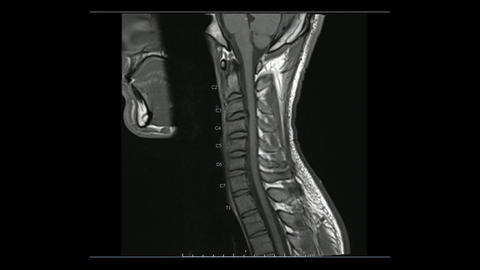 Magnetic Resonance images of Cervical spine sagittal T1-weighted images Live Action
