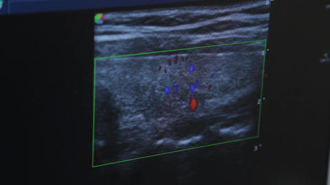 Ultrasound device in a medical center. Screen image Live Action
