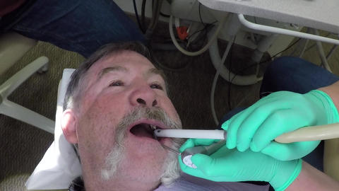 Dentist grinding cavity decay from took male patient HD 999 Footage
