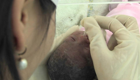 A physician performs a medical procedure on an infant Stock Video Footage